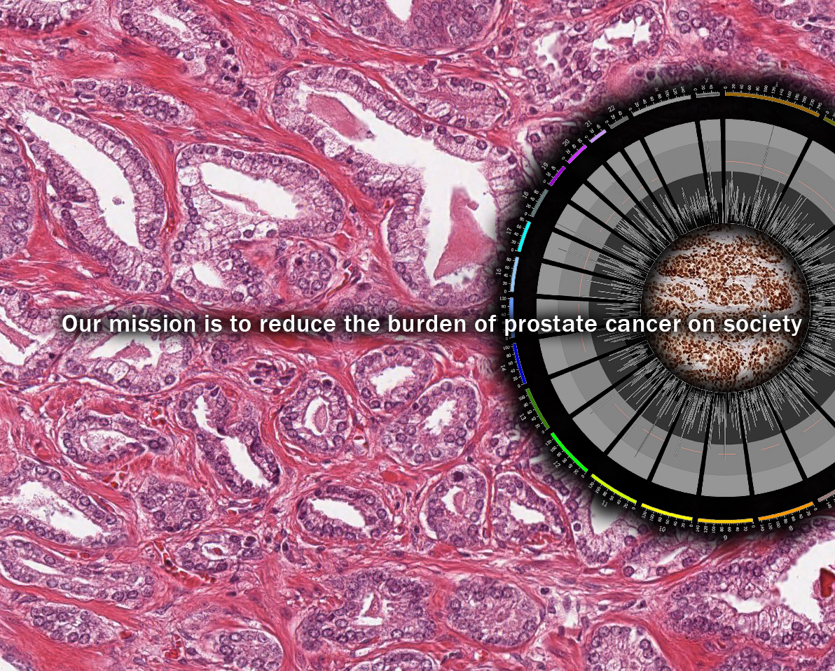 Our mission is to reduce the burden of the prostate cancer on society
