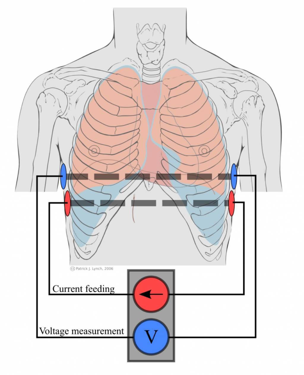 Pulmonary ventilation by impedance pneumography